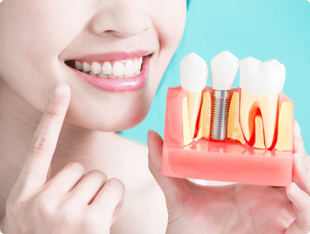 Before and After Instructions | West Calgary Periodontics