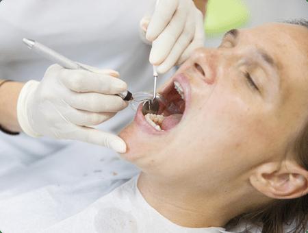 Oral Pathology | West Calgary Periodontics
